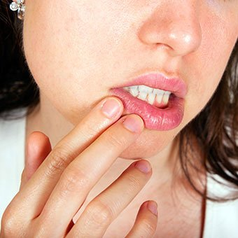 Cold-Sores-In-Mouth-How-Might-Get-Rid-of-The-Cold-Sores-Inside-Mouth